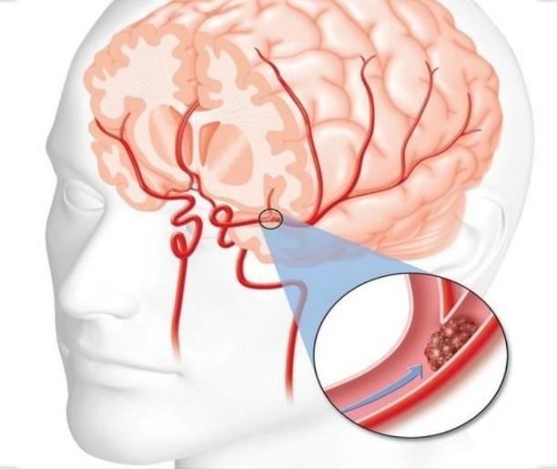 الخثرة الدموية في الدماغ