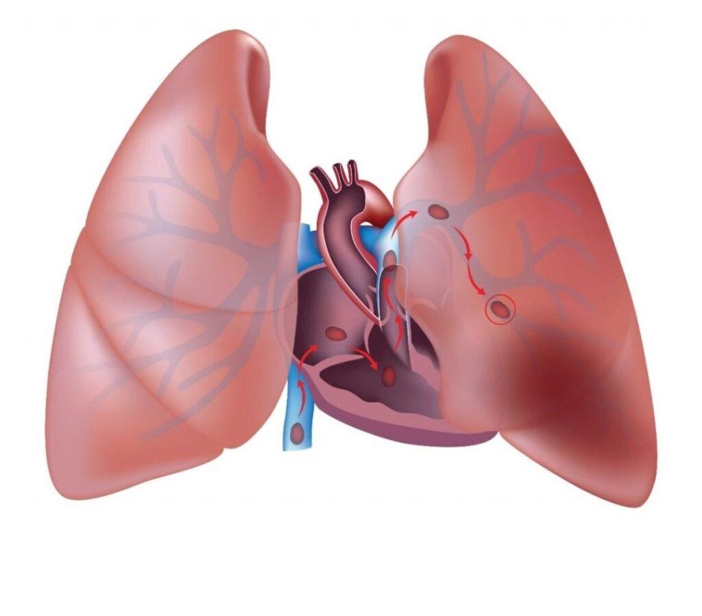 الخثرة الدموية في الرئة