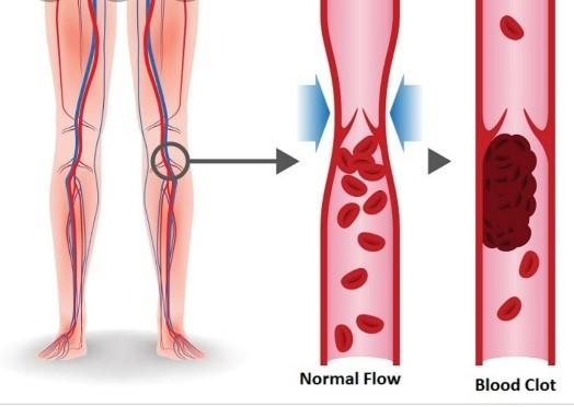 الخثرة الدموية في الساق