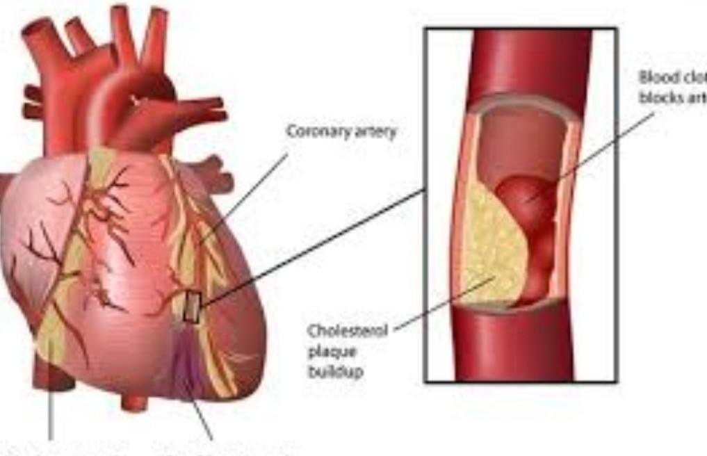 الخثرة الدموية في القلب